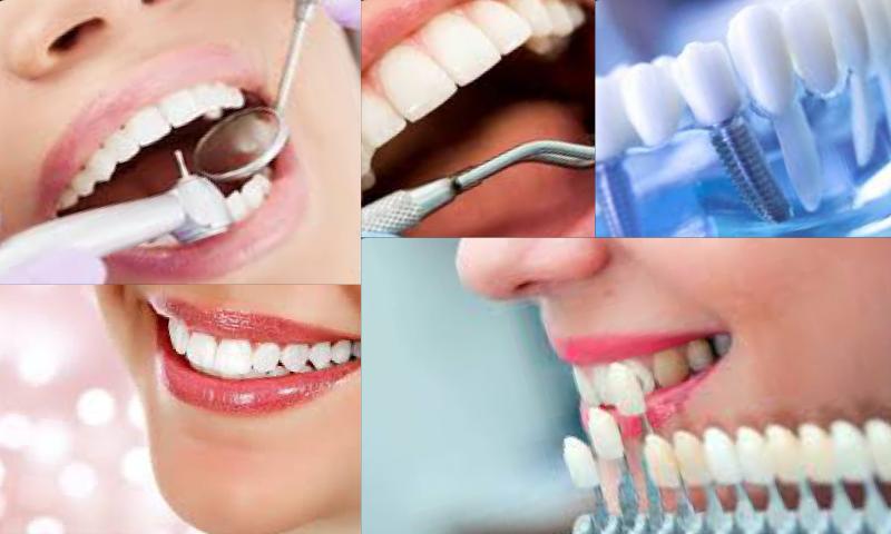 Ankara Diş Tedavisi Fiyatları