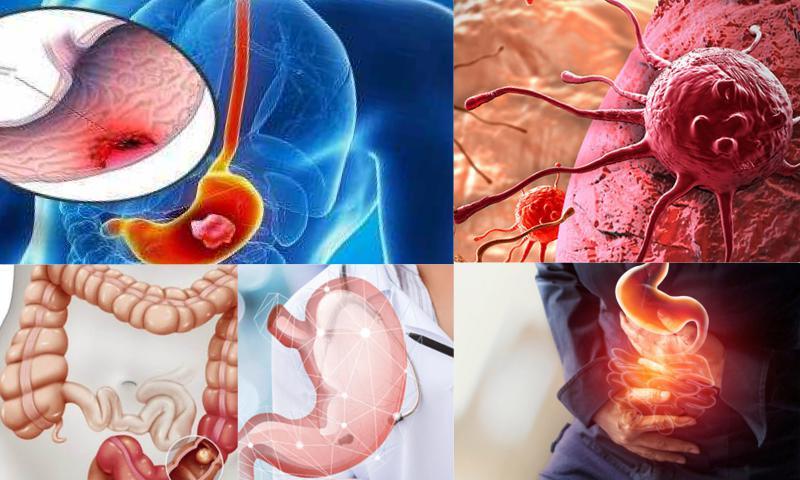 Karaciğer Kanseri çeşitleri
